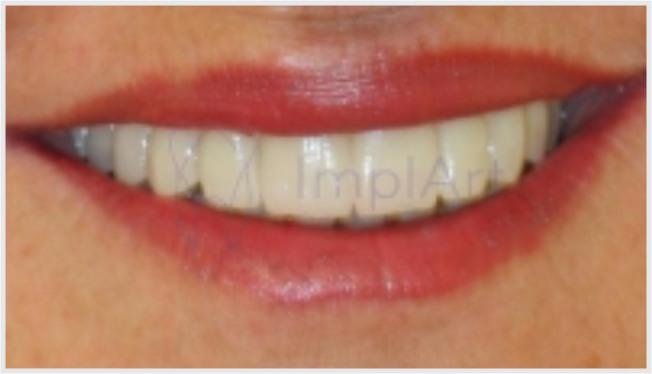 Implante total superior: prótese dental protocolo Branemark