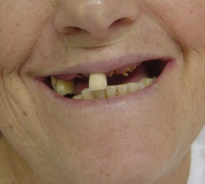 Epilepsia e a Odontologia: Tratamento Dental e implante dentário