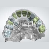 Vídeo: Odontologia digital – tecnologia CEREC CAD/CAM para prótese dentária | São Paulo