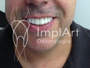 transformação do sorriso cores de dentes