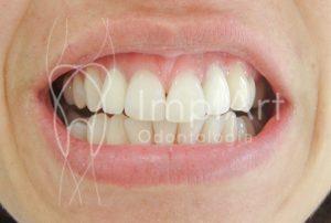 cores de dentes - transformação do sorriso