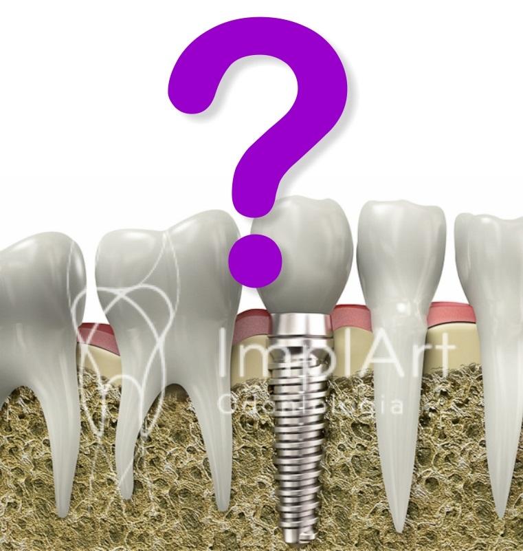 Implantes Dentários Desconhecidos