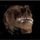 ImplArt agora oferece Tomografia Computadorizada 3D