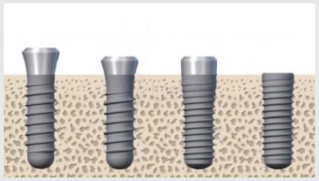 Como ocorre a Osseointegração de Implantes Dentários?