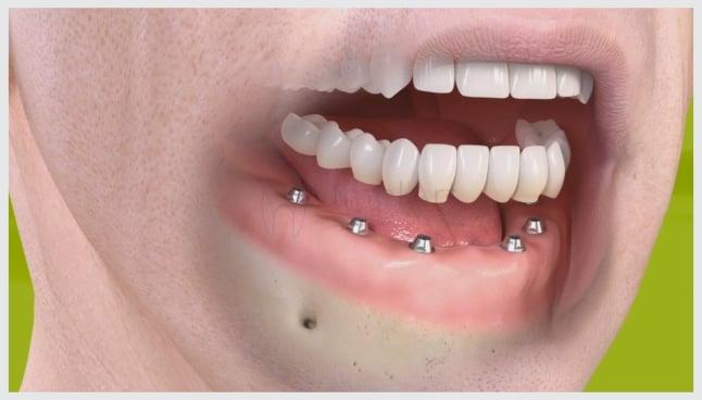 Implante dental: dúvidas comuns