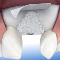 Enxerto ósseo dentário – dúvidas frequentes