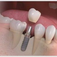 Pessoas com periodontite podem colocar implante?