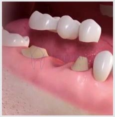 Implante Dental : Prótese provisória ajuda na estética final