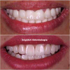 Estética Dental – Odontologia estética personalizada