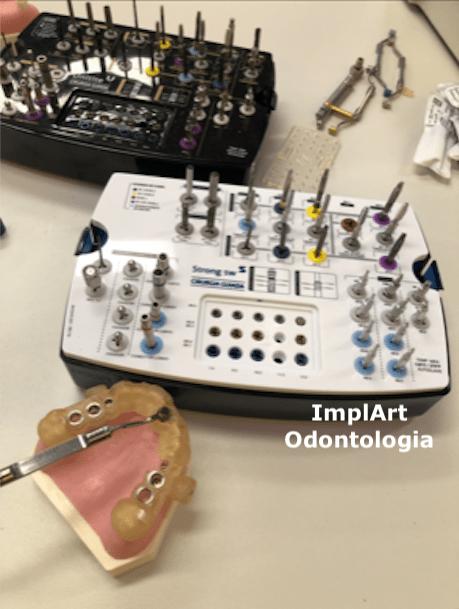 implantes_guiados_implantes