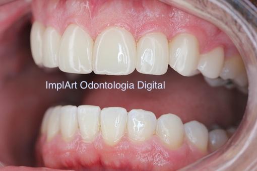reabilitacao oral individual porcelana