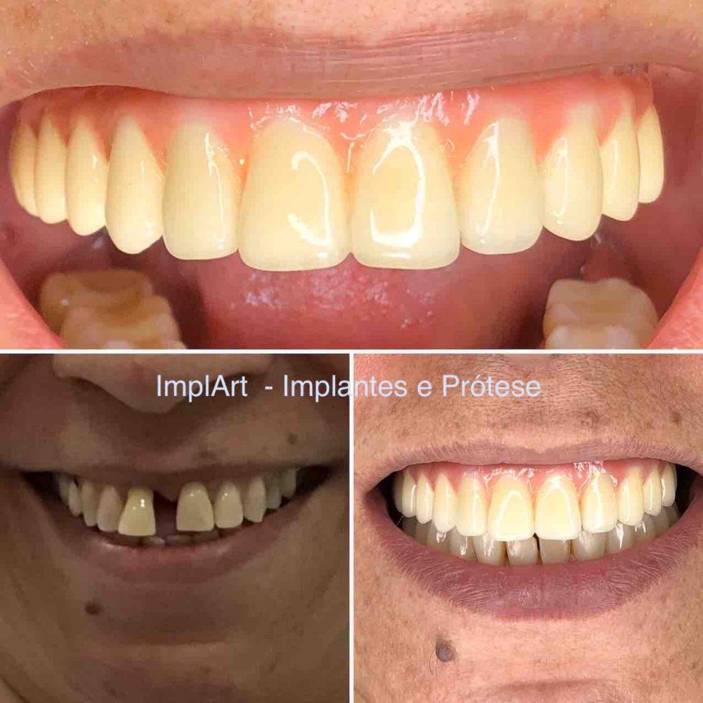 implante_dentario_antes_depois