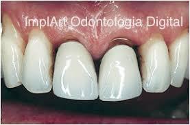 Próteses metalocerâmicas com metal apresentam problemas estéticos. O metal pode oxidar e manchar os dentes ou impregnar as raízes. A raiz ficou escura pela impregnação de Prata durante o tratamento de canal.