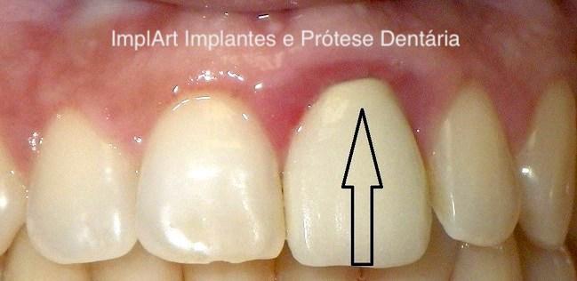 inflamação prótese dentária