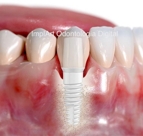 implante dentario branco sem metal