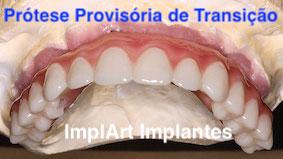 protese dentaria provisoria implante dentario 3